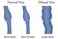 vein-diagram2
